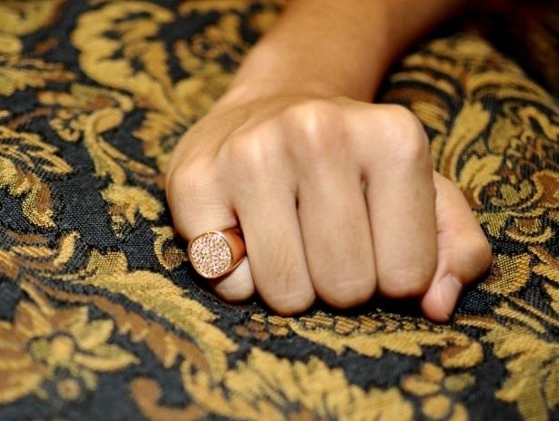Почернение кожи от золотых изделий