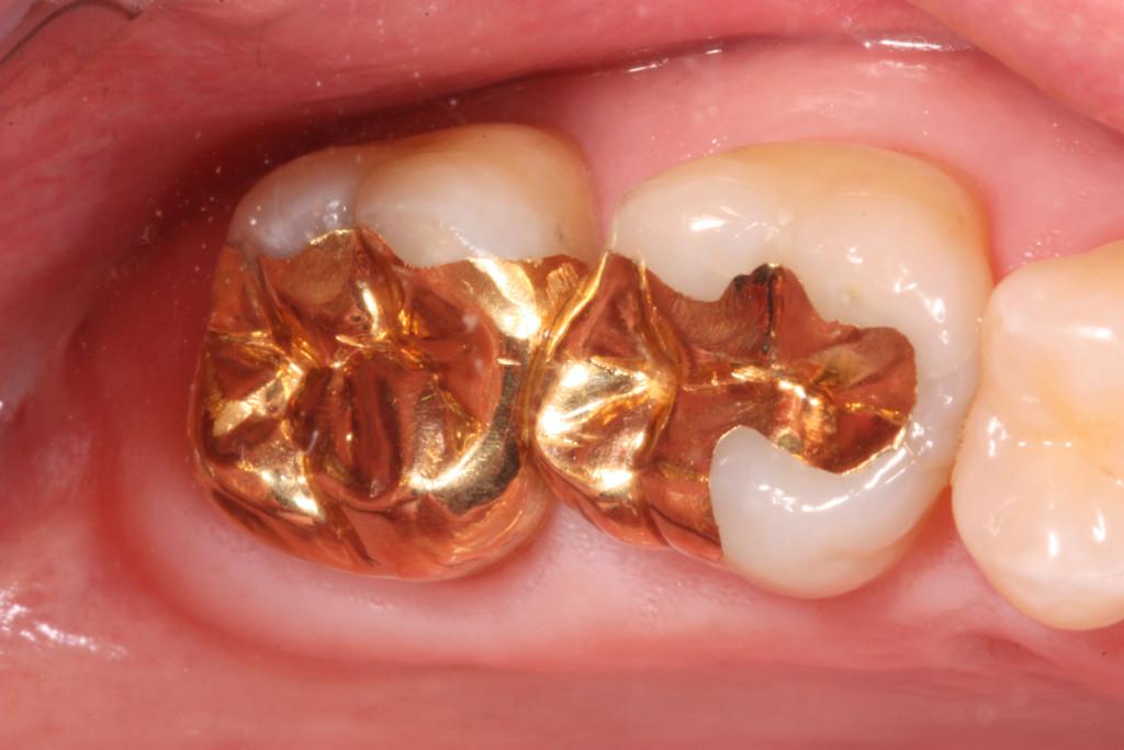 Золото в стоматологии