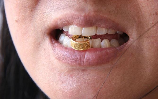 Проверка золота на зуб